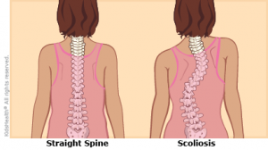 best sitting position for scoliosis