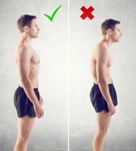can bad posture cause neck pain