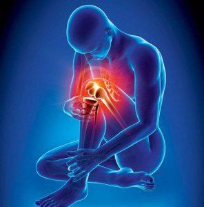 can poor posture cause arthritis