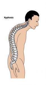 examples of bad posture