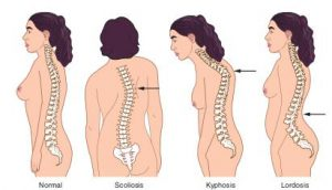 poor posture and mid back pain