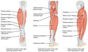 poor posture muscle spasm