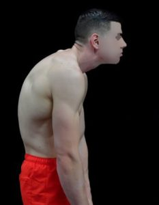 how to reverse rounded shoulders