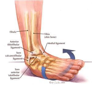 Should I wear an ankle brace to bed?